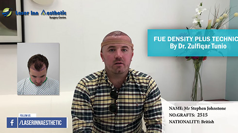 Overseas Hair Transplant patient