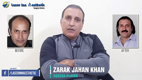 Zarak Khan Hair Transplant Results After 11 Years