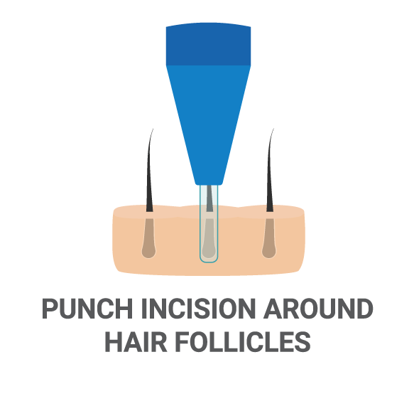 FUE Hair Transplant Process