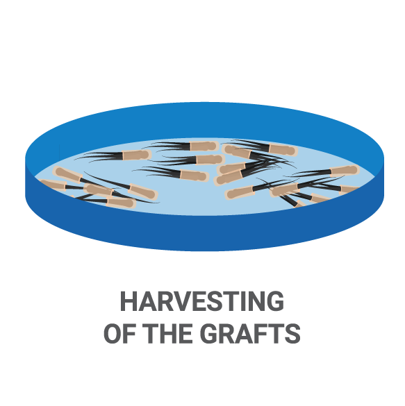 FUE Hair Transplant Process Harvesting
