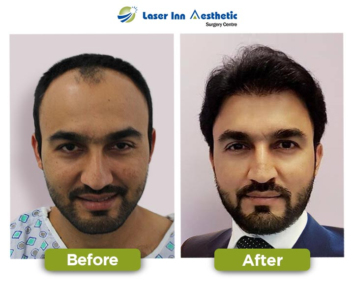 FUE Hair Transplant Results