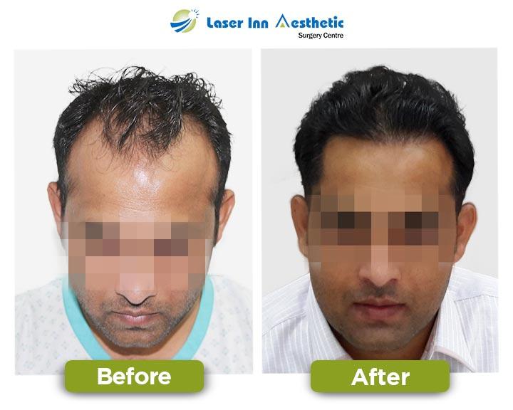 Karachi Hair Transplant Results