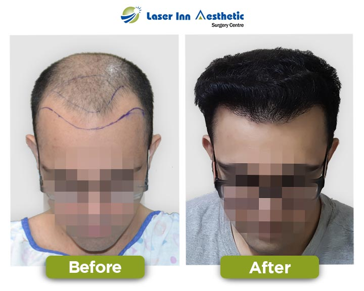 FUE Hair Transplant Results - High Density