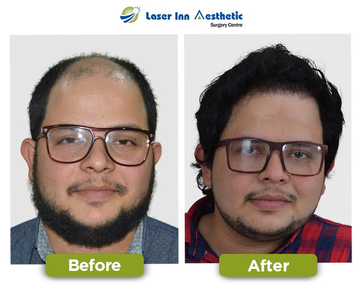 Amazing FUE Hair Transplant Results In Pakistan