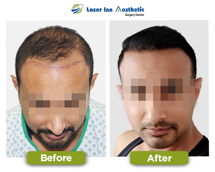 Top Hair Transplant Results