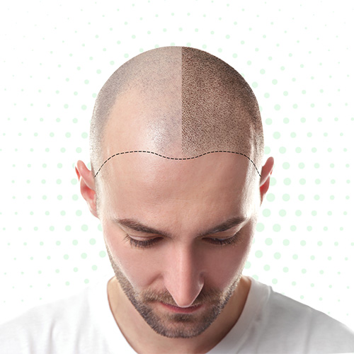 FUE Hair Transplant Laser Inn