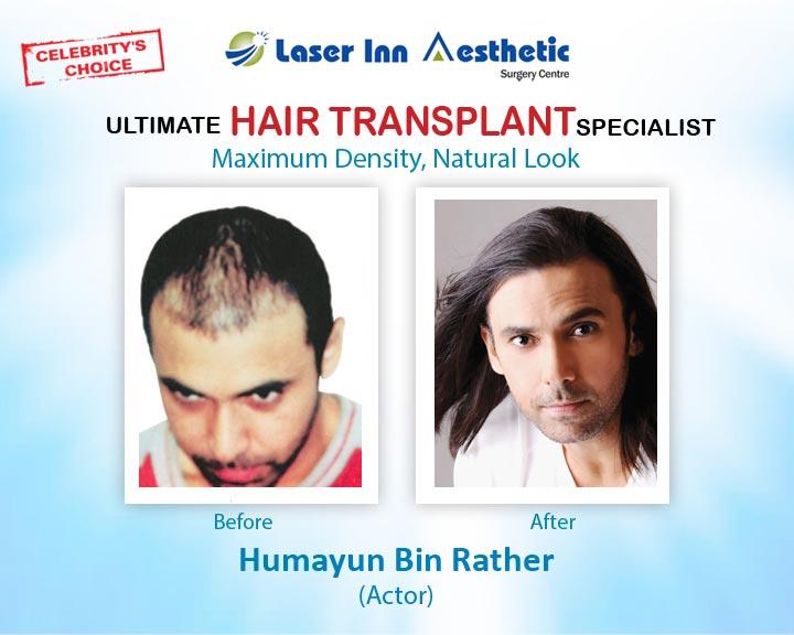Humayun Naz Hair Transplant