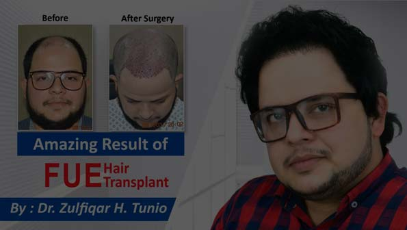 Best Hair Transplant in Pakistan